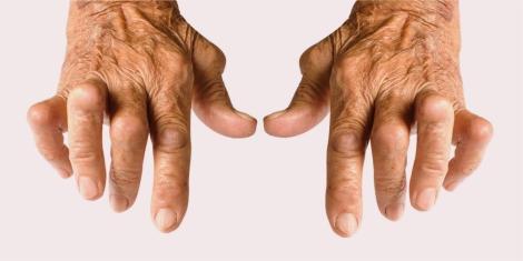A artrite provoca deformidades, que poderão levar a incapacitação parcial ou total.